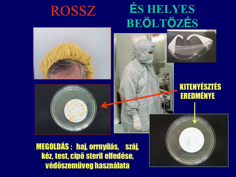 É S HELYES BE Ö LT Ö Z É S KITENYÉSZTÉS EREDMÉNYE MEGOLDÁS MEGOLDÁS : haj, orrnyílás, száj, kéz, test, cipő steril elfedése, védőszemüveg használata R