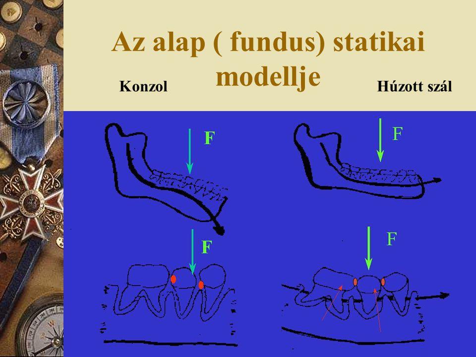 Az alap ( fundus) statikai modellje KonzolHúzott szál