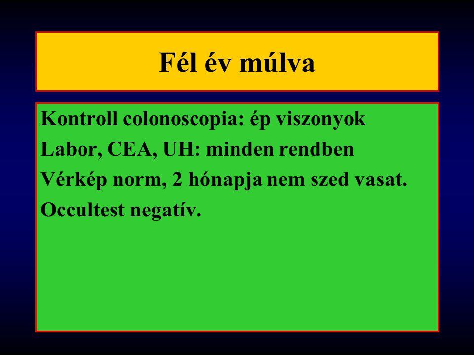 Fél év múlva Kontroll colonoscopia: ép viszonyok Labor, CEA, UH: minden rendben Vérkép norm, 2 hónapja nem szed vasat. Occultest negatív.