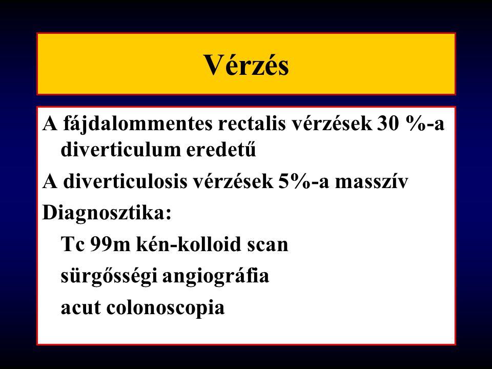 Vérzés A fájdalommentes rectalis vérzések 30 %-a diverticulum eredetű A diverticulosis vérzések 5%-a masszív Diagnosztika: Tc 99m kén-kolloid scan sürgősségi angiográfia acut colonoscopia