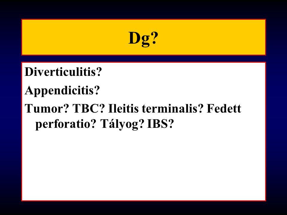 Dg? Diverticulitis? Appendicitis? Tumor? TBC? Ileitis terminalis? Fedett perforatio? Tályog? IBS?