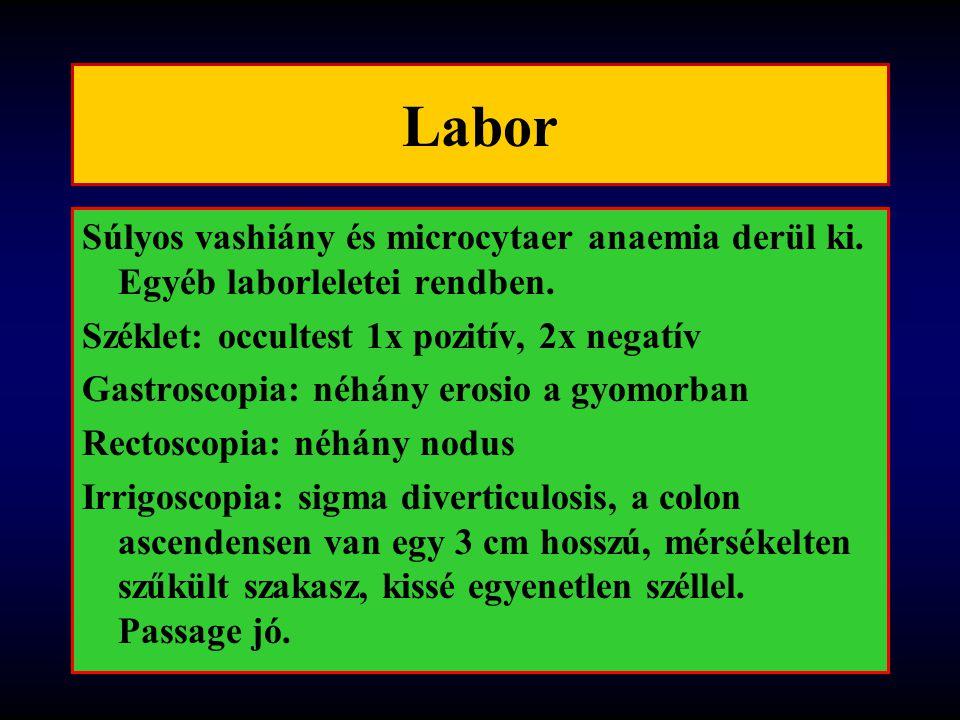 Labor Súlyos vashiány és microcytaer anaemia derül ki.
