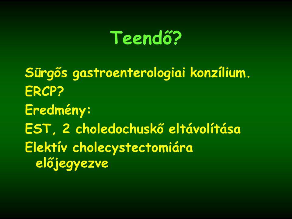 Teendő.Sürgős gastroenterologiai konzílium. ERCP.