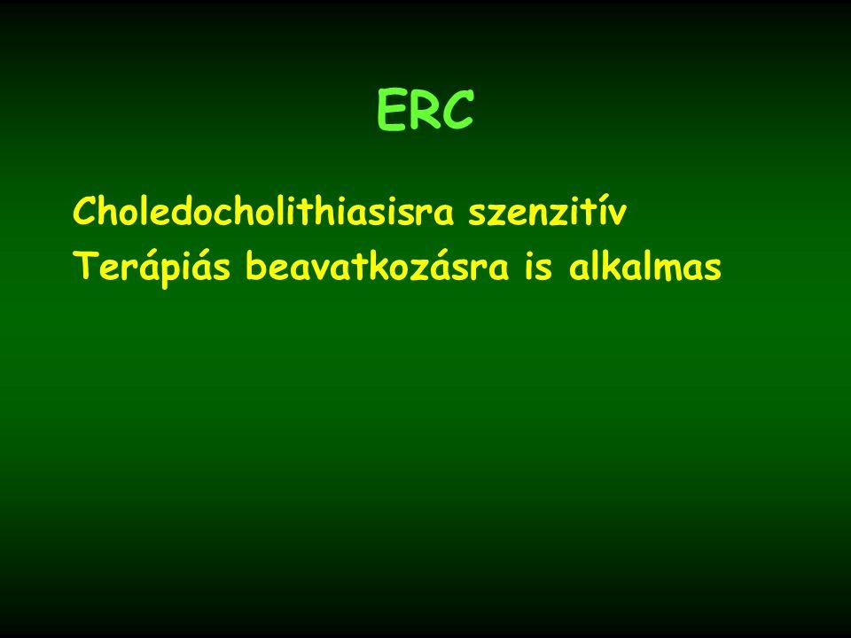ERC Choledocholithiasisra szenzitív Terápiás beavatkozásra is alkalmas