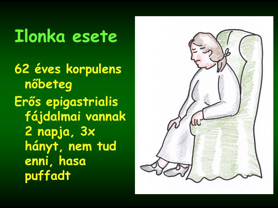 Ilonka esete 62 éves korpulens nőbeteg Erős epigastrialis fájdalmai vannak 2 napja, 3x hányt, nem tud enni, hasa puffadt