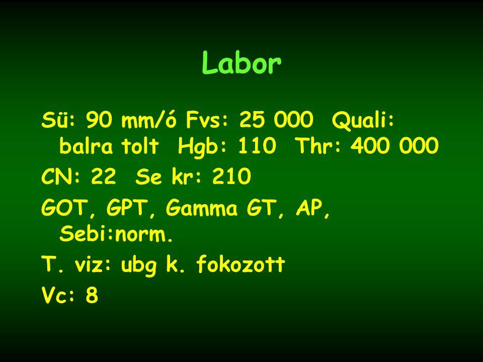 Labor Sü: 90 mm/ó Fvs: 25 000 Quali: balra tolt Hgb: 110 Thr: 400 000 CN: 22 Se kr: 210 GOT, GPT, Gamma GT, AP, Sebi:norm. T. viz: ubg k. fokozott Vc: