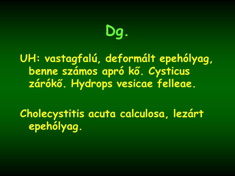 Dg. UH: vastagfalú, deformált epehólyag, benne számos apró kő. Cysticus zárókő. Hydrops vesicae felleae. Cholecystitis acuta calculosa, lezárt epehóly
