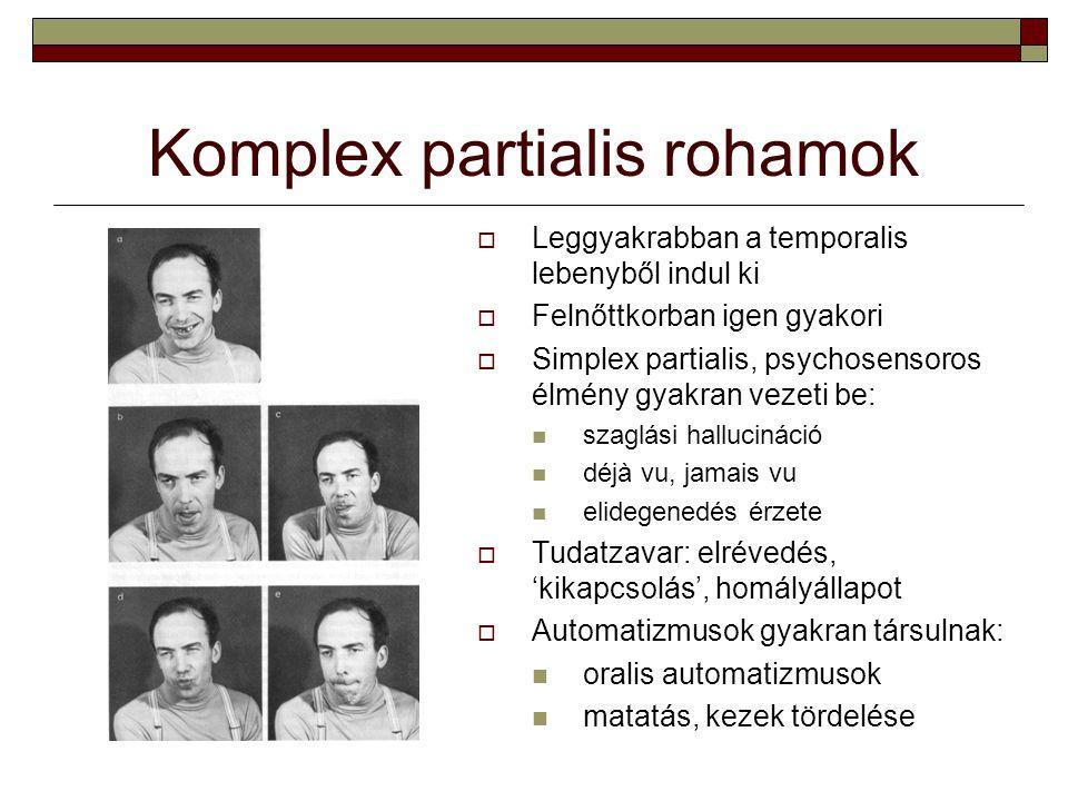 Komplex partialis rohamok  Leggyakrabban a temporalis lebenyből indul ki  Felnőttkorban igen gyakori  Simplex partialis, psychosensoros élmény gyak