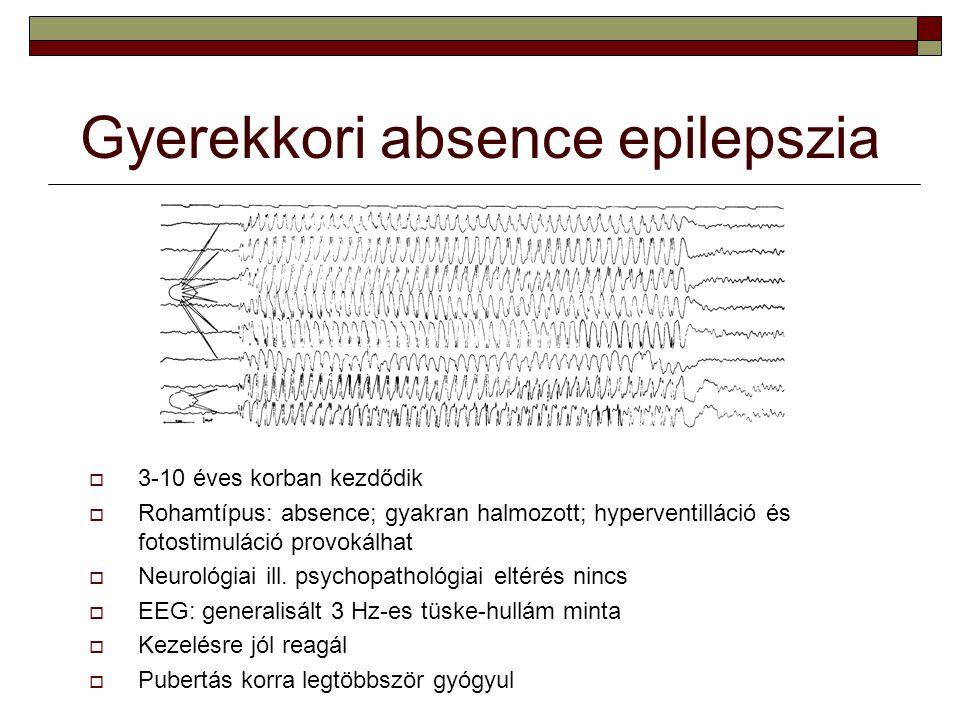 Gyerekkori absence epilepszia  3-10 éves korban kezdődik  Rohamtípus: absence; gyakran halmozott; hyperventilláció és fotostimuláció provokálhat  N