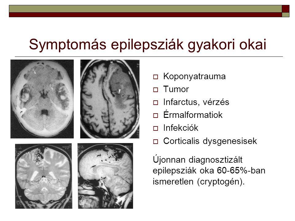 Symptomás epilepsziák gyakori okai  Koponyatrauma  Tumor  Infarctus, vérzés  Érmalformatiok  Infekciók  Corticalis dysgenesisek Újonnan diagnosz