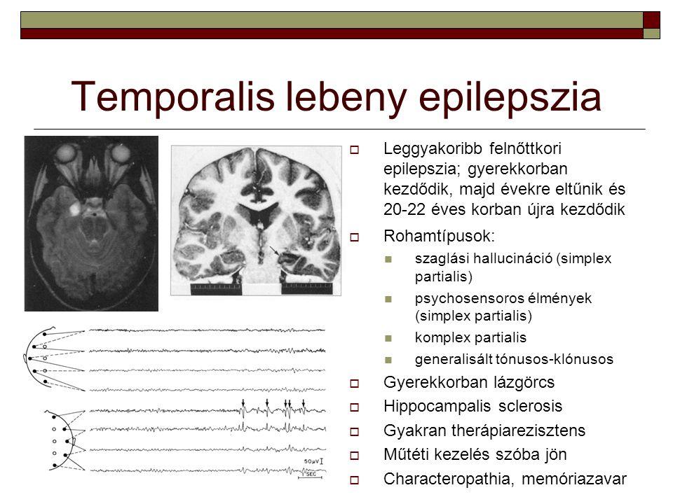 Temporalis lebeny epilepszia  Leggyakoribb felnőttkori epilepszia; gyerekkorban kezdődik, majd évekre eltűnik és 20-22 éves korban újra kezdődik  Ro