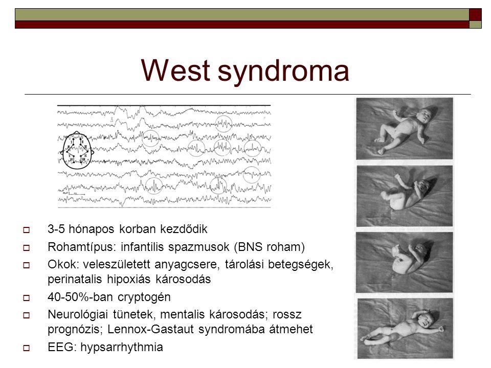 West syndroma  3-5 hónapos korban kezdődik  Rohamtípus: infantilis spazmusok (BNS roham)  Okok: veleszületett anyagcsere, tárolási betegségek, peri