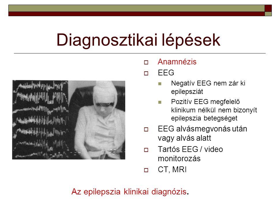 Diagnosztikai lépések  Anamnézis  EEG Negatív EEG nem zár ki epilepsziát Pozitív EEG megfelelő klinikum nélkül nem bizonyít epilepszia betegséget 