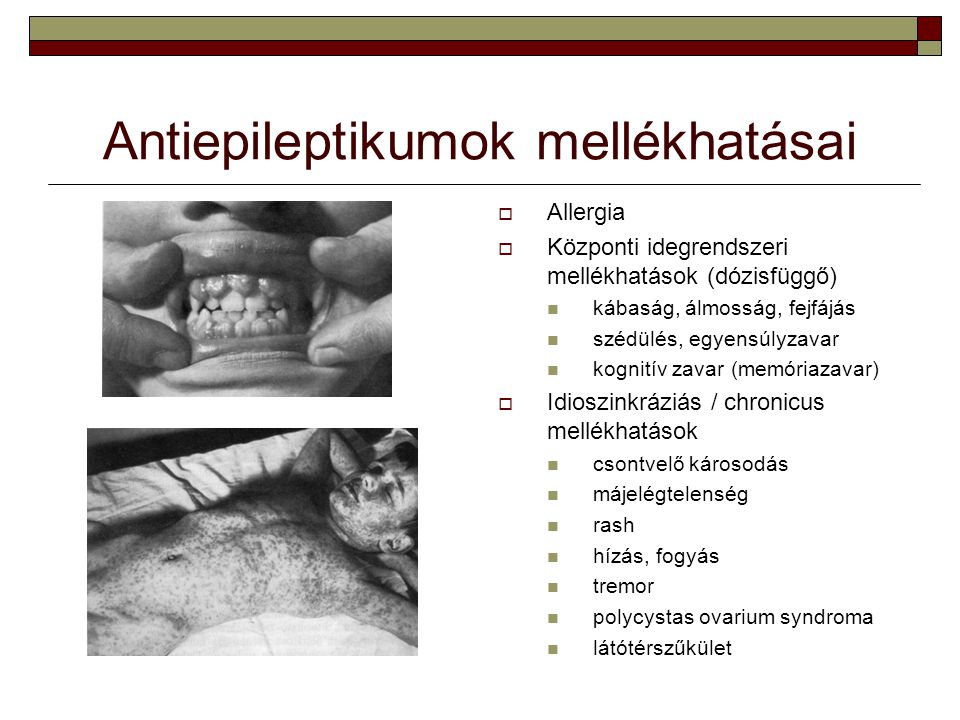 Antiepileptikumok mellékhatásai  Allergia  Központi idegrendszeri mellékhatások (dózisfüggő) kábaság, álmosság, fejfájás szédülés, egyensúlyzavar ko