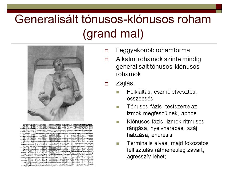 Generalisált tónusos-klónusos roham (grand mal)  Leggyakoribb rohamforma  Alkalmi rohamok szinte mindig generalisált tónusos-klónusos rohamok  Zajl