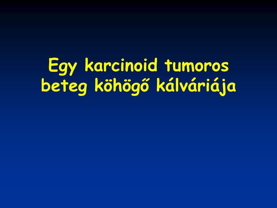 Egy karcinoid tumoros beteg köhögő kálváriája