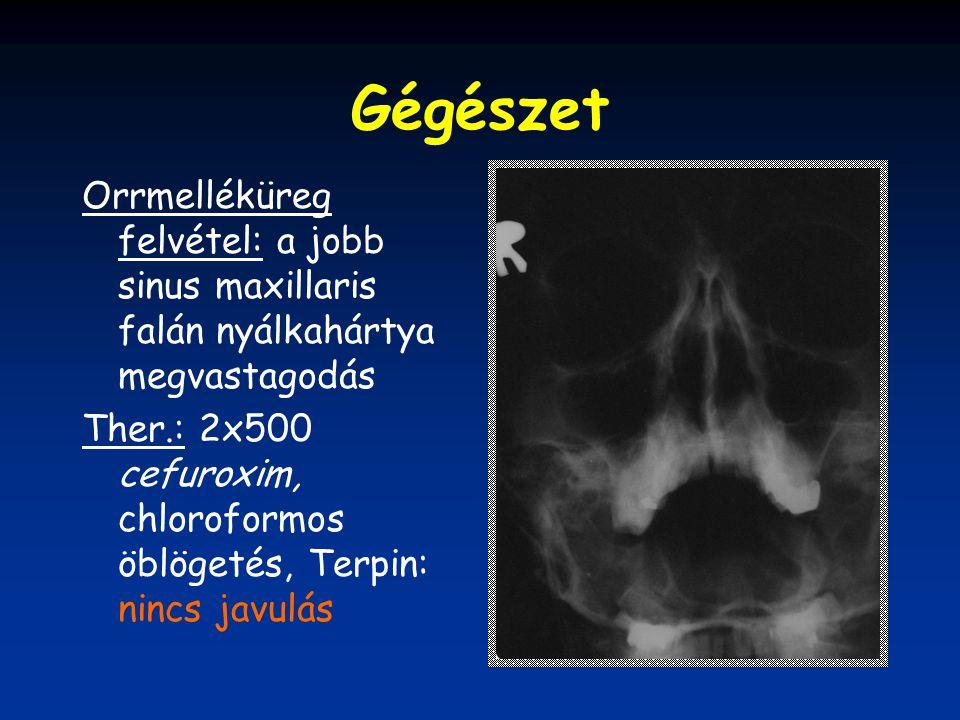 Gégészet Orrmelléküreg felvétel: a jobb sinus maxillaris falán nyálkahártya megvastagodás Ther.: 2x500 cefuroxim, chloroformos öblögetés, Terpin: ninc