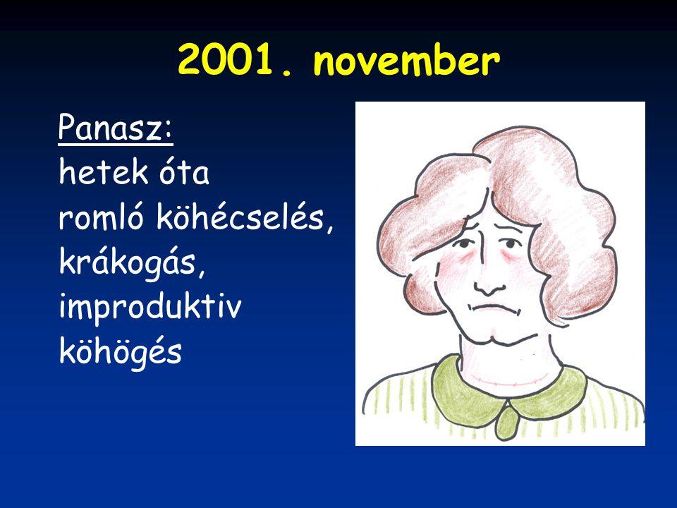 2001. november Panasz: hetek óta romló köhécselés, krákogás, improduktiv köhögés