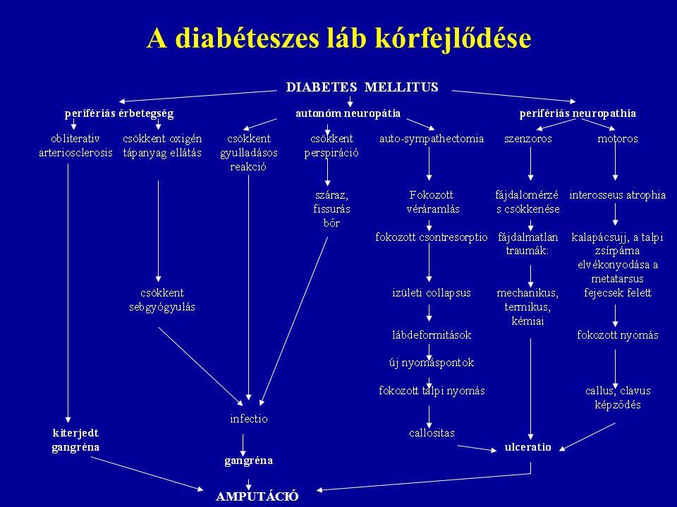 A diabéteszes láb kórfejlődése AMPUTÁCIÓ