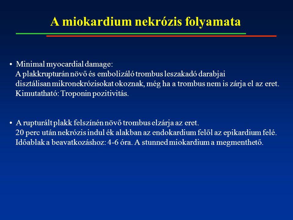 A miokardium nekrózis folyamata Minimal myocardial damage: A plakkrupturán növő és embolizáló trombus leszakadó darabjai disztálisan mikronekrózisokat okoznak, még ha a trombus nem is zárja el az eret.