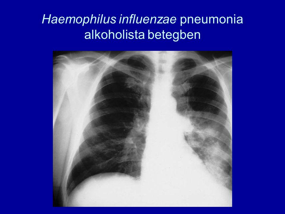 Haemophilus influenzae pneumonia alkoholista betegben