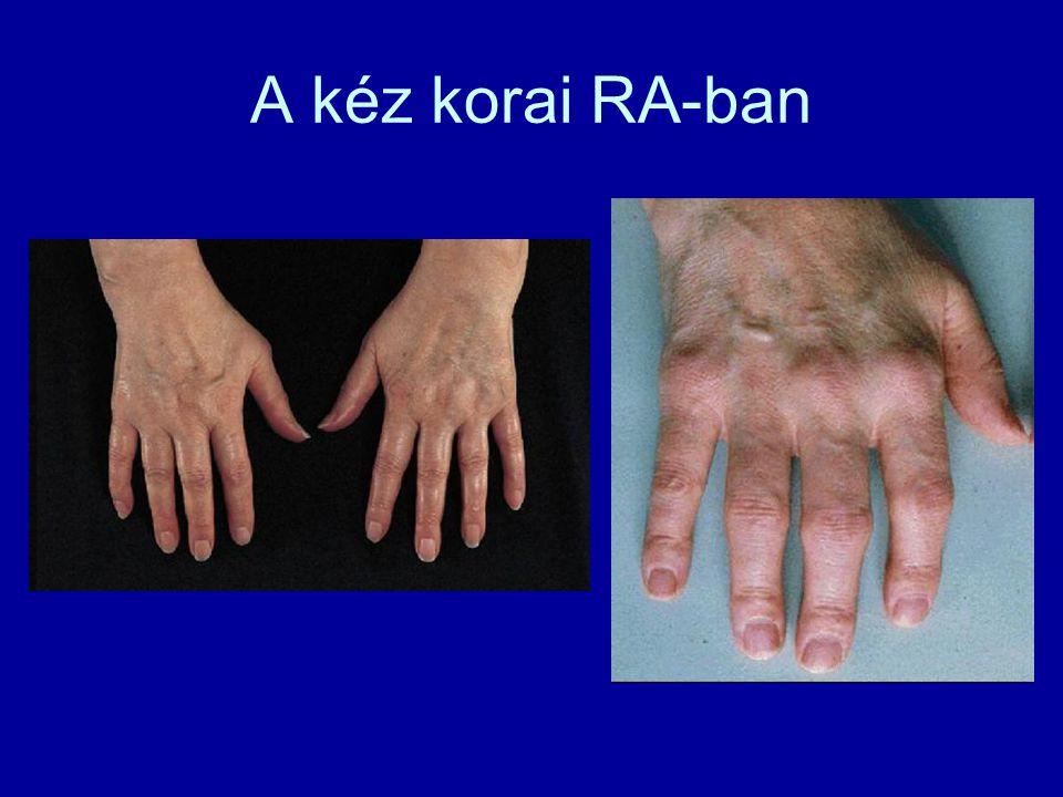 A kéz korai RA-ban