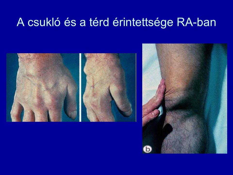 A csukló és a térd érintettsége RA-ban