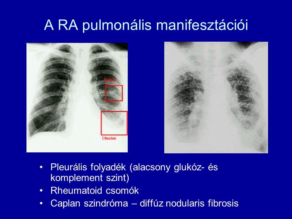 A RA pulmonális manifesztációi Pleurális folyadék (alacsony glukóz- és komplement szint) Rheumatoid csomók Caplan szindróma – diffúz nodularis fibrosis