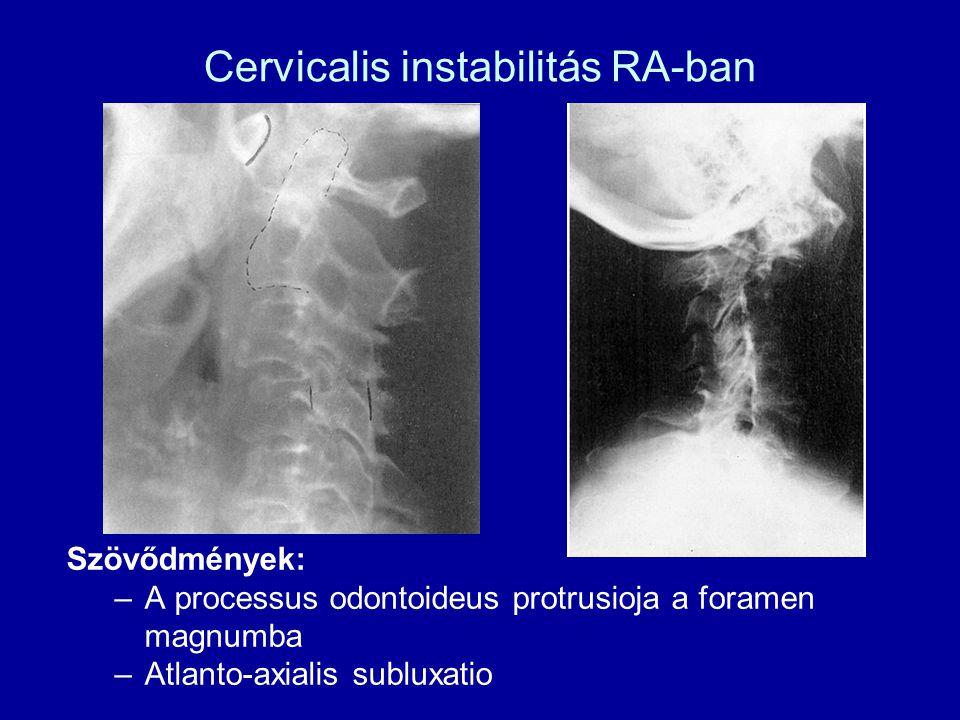 Cervicalis instabilitás RA-ban Szövődmények: –A processus odontoideus protrusioja a foramen magnumba –Atlanto-axialis subluxatio