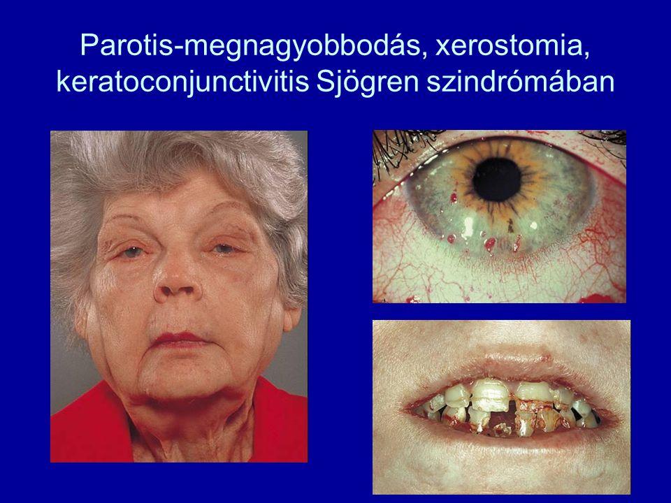 Parotis-megnagyobbodás, xerostomia, keratoconjunctivitis Sjögren szindrómában