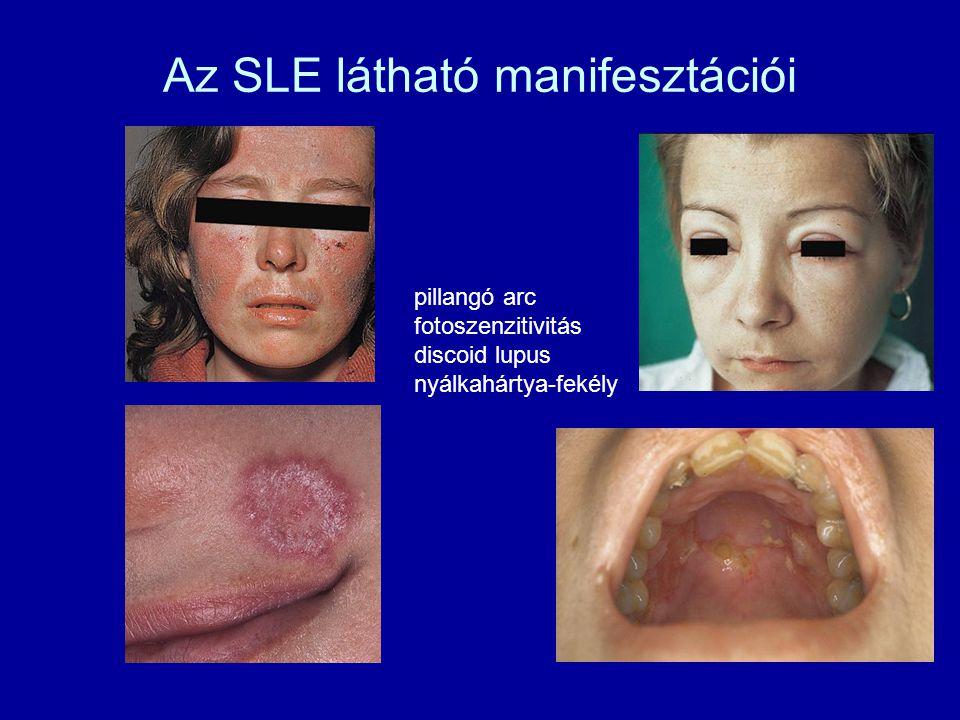 Az SLE látható manifesztációi pillangó arc fotoszenzitivitás discoid lupus nyálkahártya-fekély