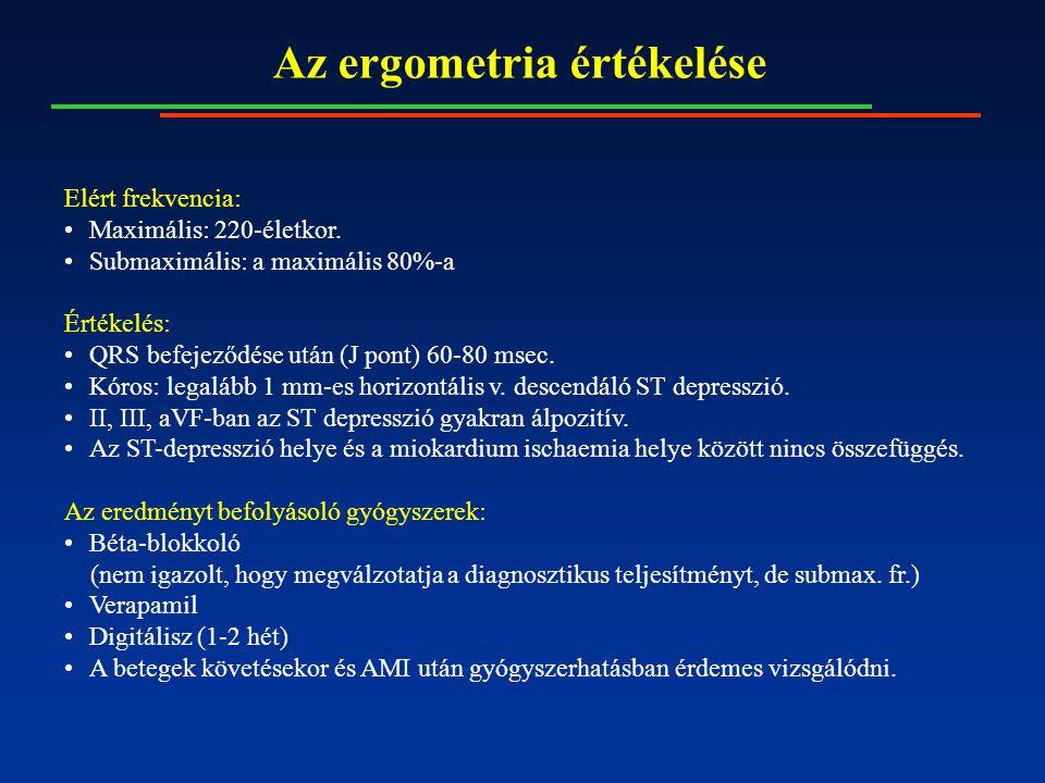 Az ergometria értékelése Elért frekvencia: Maximális: 220-életkor. Submaximális: a maximális 80%-a Értékelés: QRS befejeződése után (J pont) 60-80 mse