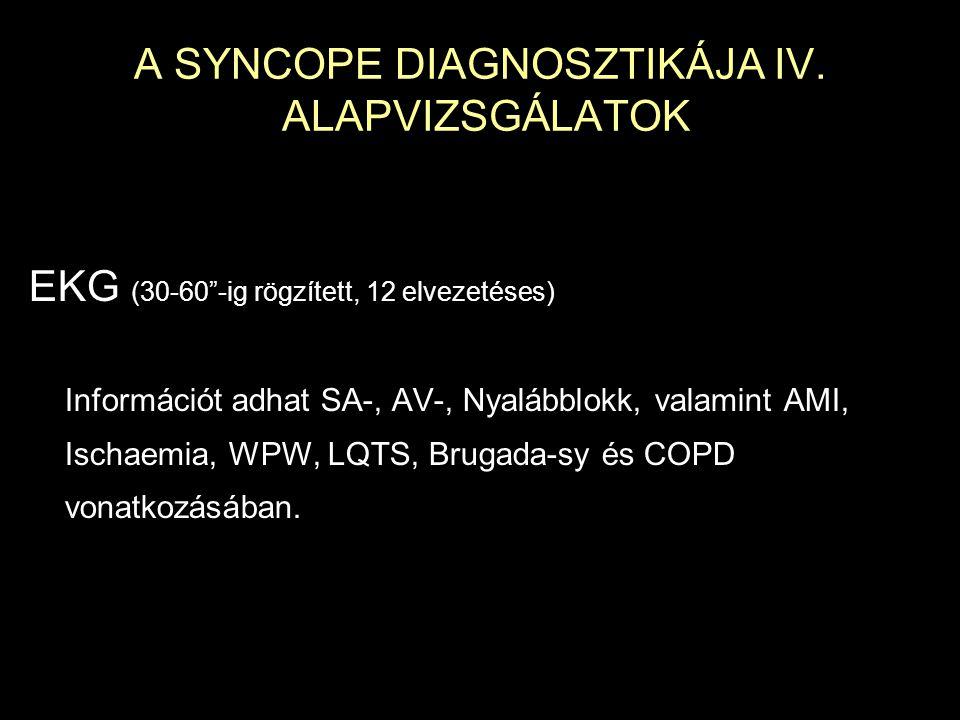 """A SYNCOPE DIAGNOSZTIKÁJA IV. ALAPVIZSGÁLATOK EKG (30-60""""-ig rögzített, 12 elvezetéses) Információt adhat SA-, AV-, Nyalábblokk, valamint AMI, Ischaemi"""