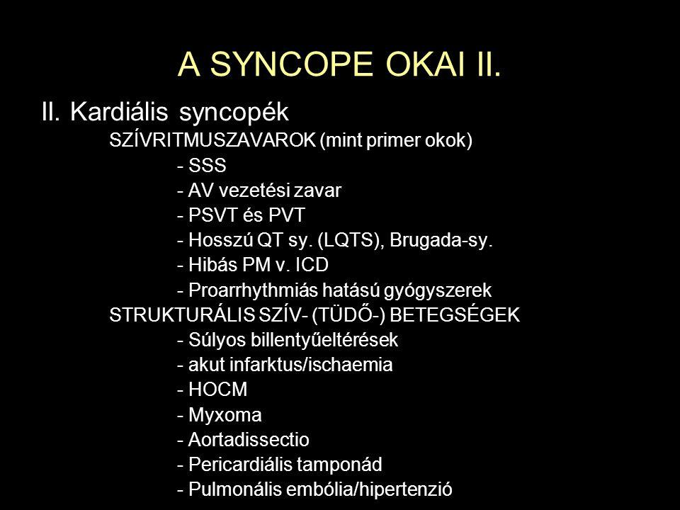 A SYNCOPE KEZELÉSE Vasovagalis: Felvilágosítás a jó prognózisról, életmód, edzés, tilt-training; midodrin (Gutron-csepp, α -agonista), fludrokortizon(Astonin-H) Carotis sinus hyperaesthesia: PACEMAKER Ortoszatikus: Felvilágosítás a jó prognózisról, fokozott folyadékbevitel reggel felkelés előtt, GYÓGYSZEREK MÓDOSÍTÁSA!, tilt-training, ágy fejének megemelése, gumiharisnya, vérnyomásemelő pózok (guggolás), gyakoribb, kisvolumenű étkezés (esetleg midodrin) Strukturális szívbet.: Műtéti, ha lehetséges SSS, AV-blokk (M.II.