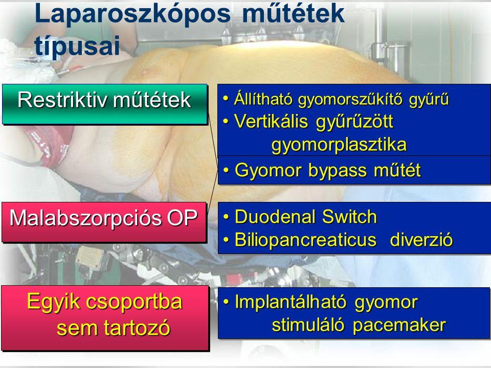 Laparoszkópos műtétek típusai Duodenal Switch Duodenal Switch Biliopancreaticus diverzió Biliopancreaticus diverzió Duodenal Switch Duodenal Switch Biliopancreaticus diverzió Biliopancreaticus diverzió Állítható gyomorszűkítő gyűrű Állítható gyomorszűkítő gyűrű Vertikális gyűrűzött gyomorplasztika Vertikális gyűrűzött gyomorplasztika Állítható gyomorszűkítő gyűrű Állítható gyomorszűkítő gyűrű Vertikális gyűrűzött gyomorplasztika Vertikális gyűrűzött gyomorplasztika Restriktiv műtétek Malabszorpciós OP Egyik csoportba sem tartozó Implantálható gyomor Implantálható gyomor stimuláló pacemaker Implantálható gyomor Implantálható gyomor stimuláló pacemaker Gyomor bypass műtét Gyomor bypass műtét