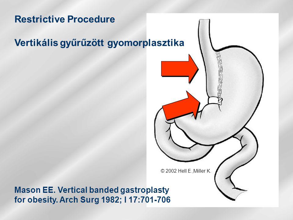 © 2002 Hell E.,Miller K.Mason EE. Vertical banded gastroplasty for obesity.