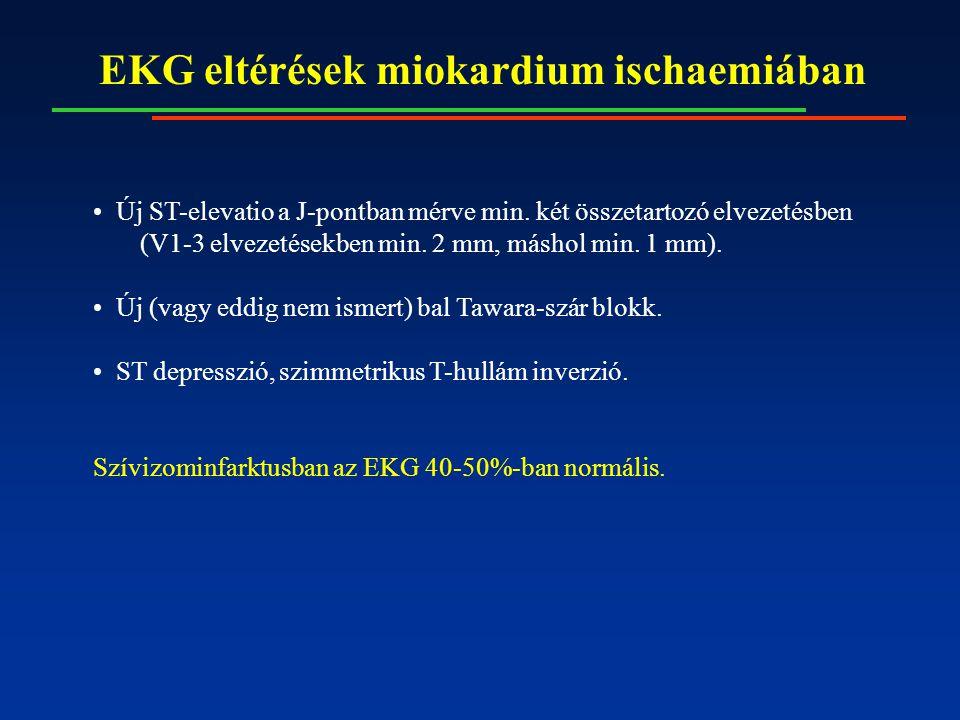 EKG eltérések miokardium ischaemiában Új ST-elevatio a J-pontban mérve min. két összetartozó elvezetésben (V1-3 elvezetésekben min. 2 mm, máshol min.
