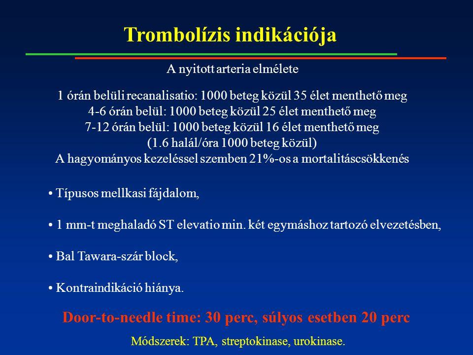 Trombolízis indikációja Típusos mellkasi fájdalom, 1 mm-t meghaladó ST elevatio min. két egymáshoz tartozó elvezetésben, Bal Tawara-szár block, Kontra