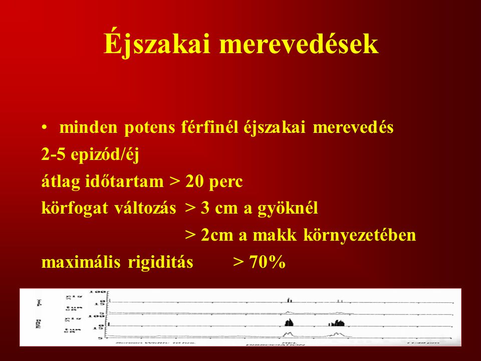 Éjszakai merevedések minden potens férfinél éjszakai merevedés 2-5 epizód/éj átlag időtartam > 20 perc körfogat változás> 3 cm a gyöknél > 2cm a makk környezetében maximális rigiditás> 70%