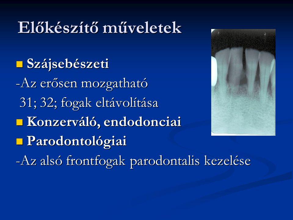 Előkészítő műveletek Szájsebészeti Szájsebészeti -Az erősen mozgatható 31; 32; fogak eltávolítása 31; 32; fogak eltávolítása Konzerváló, endodonciai K