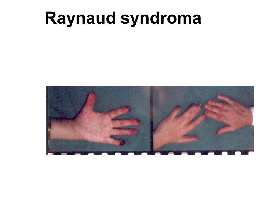 Raynaud syndroma