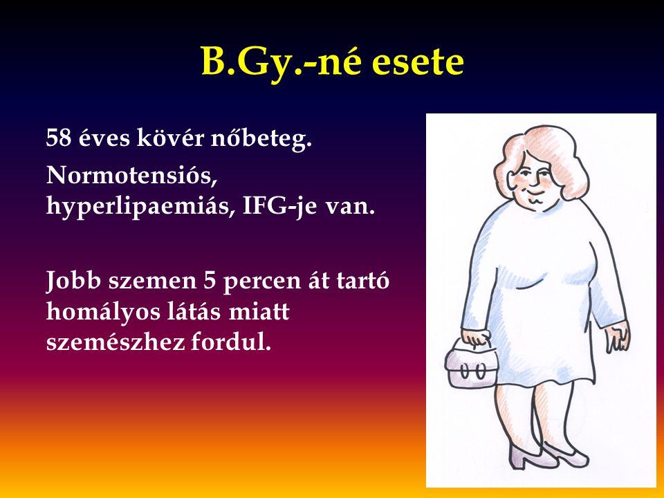 B.Gy.-né esete 58 éves kövér nőbeteg. Normotensiós, hyperlipaemiás, IFG-je van. Jobb szemen 5 percen át tartó homályos látás miatt szemészhez fordul.
