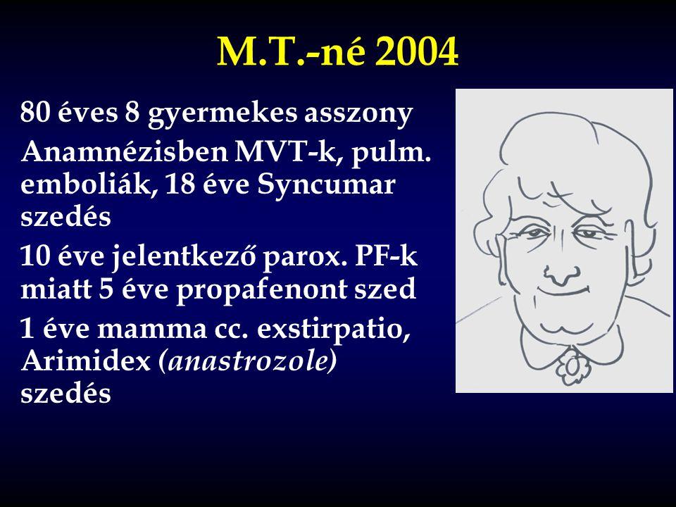 M.T.-né 2004 80 éves 8 gyermekes asszony Anamnézisben MVT-k, pulm. emboliák, 18 éve Syncumar szedés 10 éve jelentkező parox. PF-k miatt 5 éve propafen