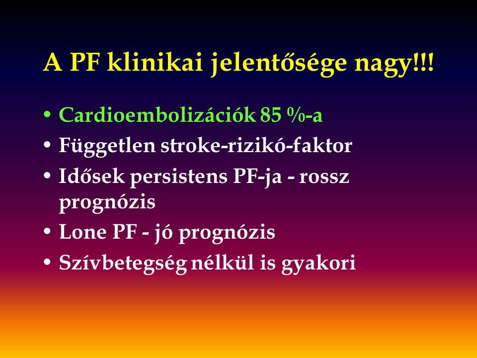 A PF klinikai jelentősége nagy!!! Cardioembolizációk 85 %-a Független stroke-rizikó-faktor Idősek persistens PF-ja - rossz prognózis Lone PF - jó prog