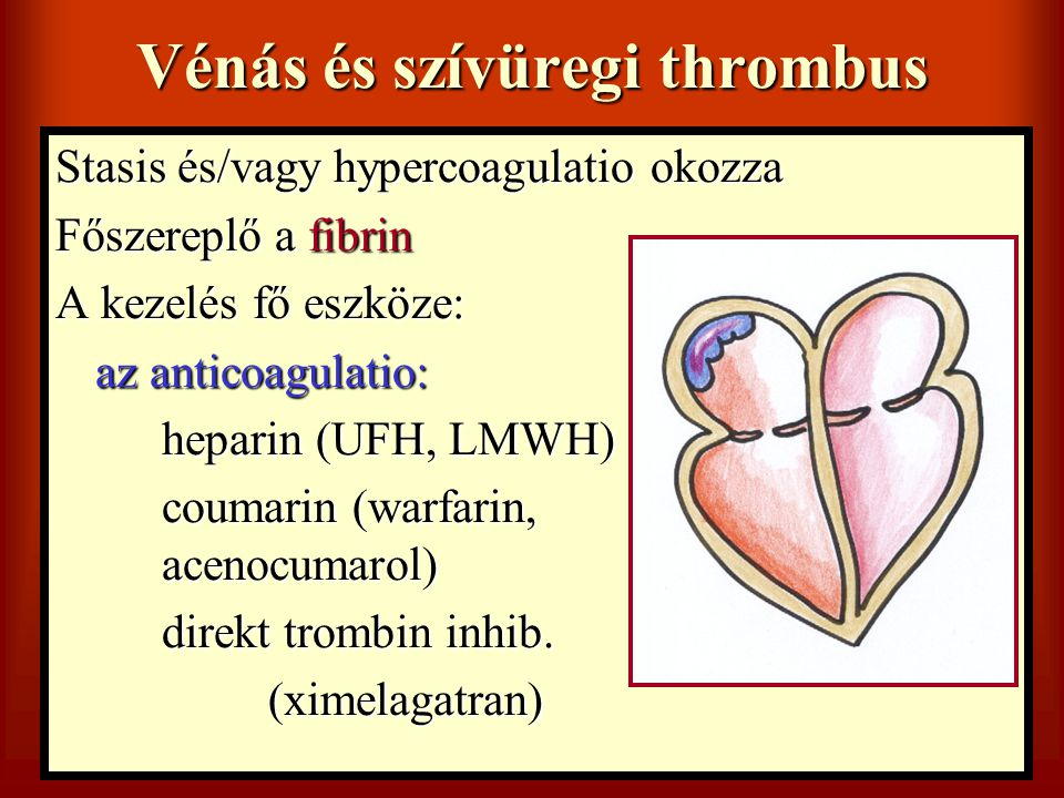 Vénás és szívüregi thrombus Stasis és/vagy hypercoagulatio okozza Főszereplő a fibrin A kezelés fő eszköze: az anticoagulatio: heparin (UFH, LMWH) cou