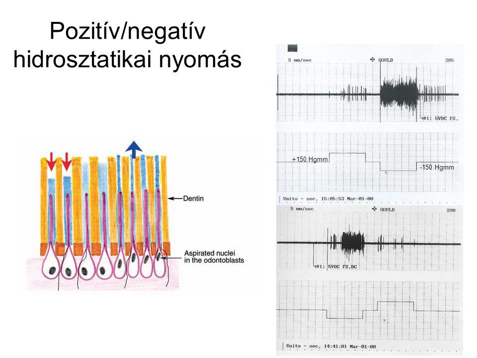 Pozitív/negatív hidrosztatikai nyomás +150 Hgmm -150 Hgmm