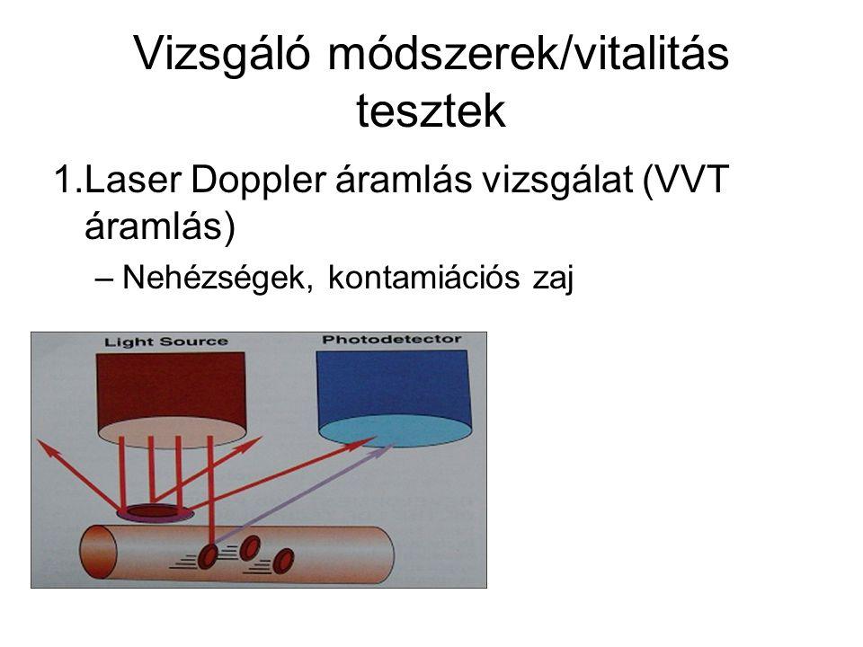 1.Laser Doppler áramlás vizsgálat (VVT áramlás) –Nehézségek, kontamiációs zaj Vizsgáló módszerek/vitalitás tesztek
