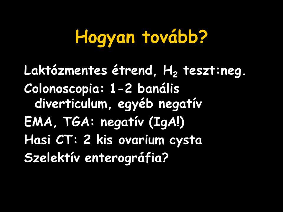 Hogyan tovább? Laktózmentes étrend, H 2 teszt:neg. Colonoscopia: 1-2 banális diverticulum, egyéb negatív EMA, TGA: negatív (IgA!) Hasi CT: 2 kis ovari