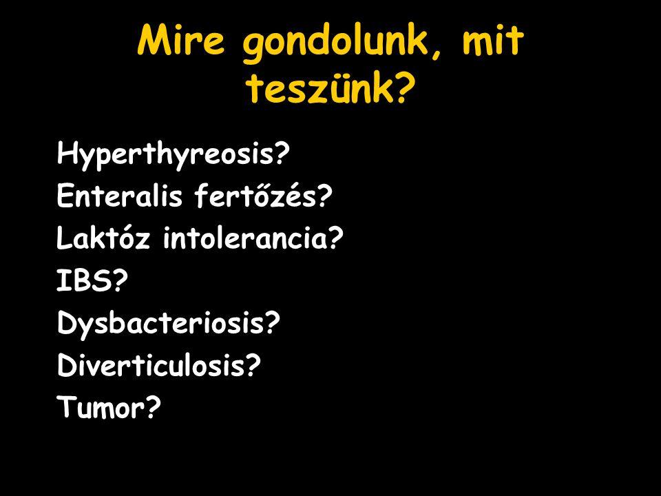 Mire gondolunk, mit teszünk? Hyperthyreosis? Enteralis fertőzés? Laktóz intolerancia? IBS? Dysbacteriosis? Diverticulosis? Tumor?