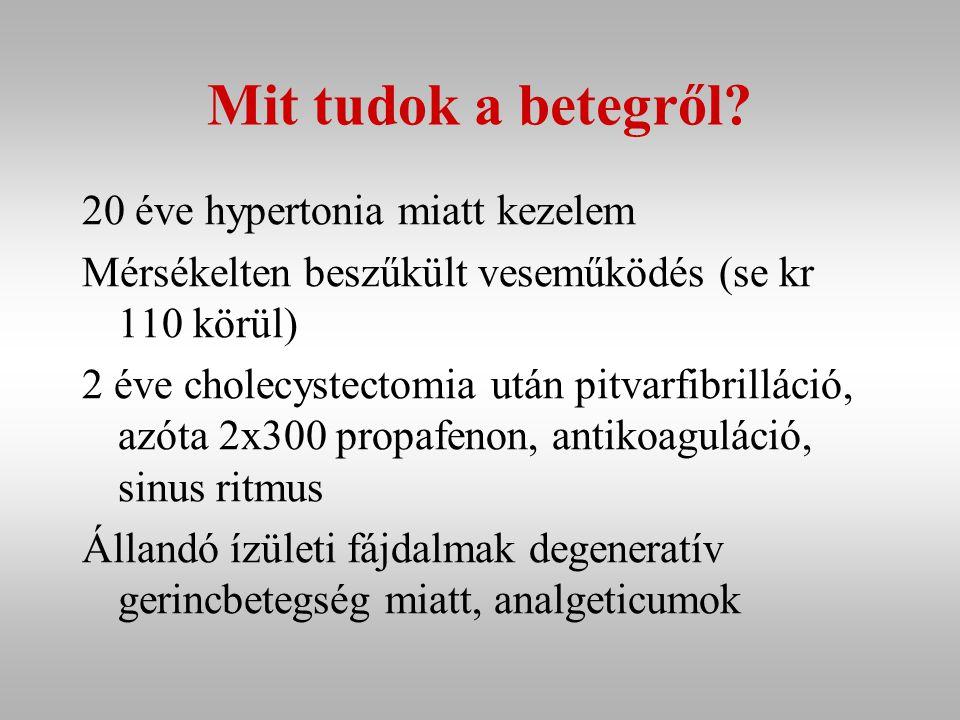 Gyógyszerei 2x10 mg enalapril (Renitec) 1x12.5 mg hypothiazid (Hypothiazid) 2x10 mg retard nifedipin (Corinfar retard) 2x300 mg propafenon (Propafenon) 1x 25 mg retard metoprolol (Betaloc ZOK) napi 1 mg acenocumarol (Syncumar) analgetikumok a patikából